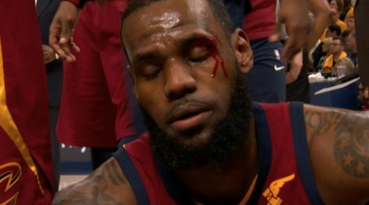 LeBron James Bleeding After Taking Elbow to Face